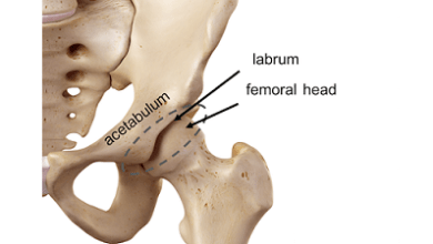 Photo of Femoral Head Fractures: First Study of Minimum 10-Year Outcomes