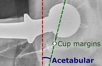 Photo of New Free Tool to Study Cup Orientation and Pelvic Dynamics in THA Patients