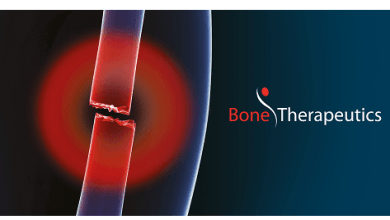 Photo of Bone Therapeutics treats first patient in ALLOB Phase IIb tibial fracture study