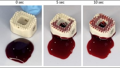 Photo of Zavation Medical Products, LLC, Launches Zavation LABYRINTH™ Fully Porous PEEK Cage