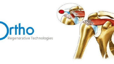 Photo of Ortho Regenerative Technologies Adds Patrick O'Donnell to Board of Directors