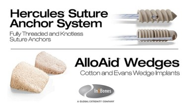 Photo of In2Bones Continues Driving Innovation with Launch of the Hercules™ Suture Anchors and AlloAid® Wedges