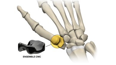 Photo of Ensemble Orthopedics Announces Successful First Implantation Of Its Pyrocarbon Interpositional CMC
