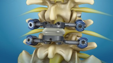 Photo of Premia Spine Announces FDA Breakthrough Device Designation for Its TOPS™ Spinal Arthroplasty System