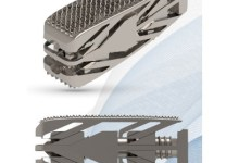 Photo of Tsunami Medical Announces the Launch of Procida, 3D Printed PLIF Titanium Cage with Expansion Feature