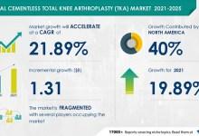 Photo of Cementless Total Knee Arthroplasty (TKA) Market: Organic and Inorganic Growth Strategies of Leading Vendors