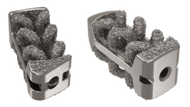 Photo of Camber Spine Receives FDA Clearance for SPIRA-P and SPIRA-T Technologies
