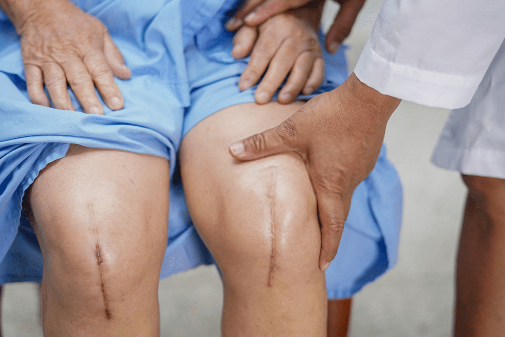 Patient Experience: Should You Have Both Knee Replacement at the Same Time?