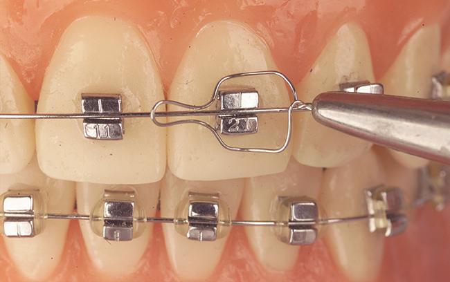 Friccion-Ortodoncia-Postgrado-Master-Formacion-brackets