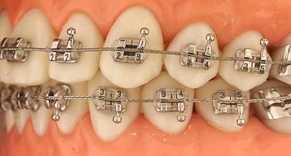 bracket-ortodoncia-postgrado-master