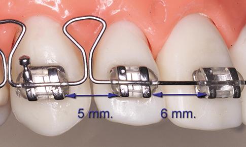 ortodoncia-posgrado-master-correcion-rotacion-dental-componentes-2