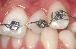 ortodoncia-biomecanica-bracket-aparatologia-formacion-9