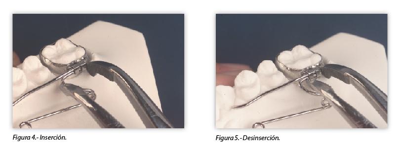 ortodoncia-biomecanica-sujecion-removible