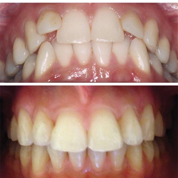 aparat dentar ortoclass