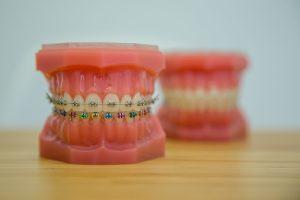model aparat dentar