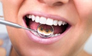 aparat dentar invizibil