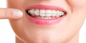 rezultate aparat dentar ortoclass