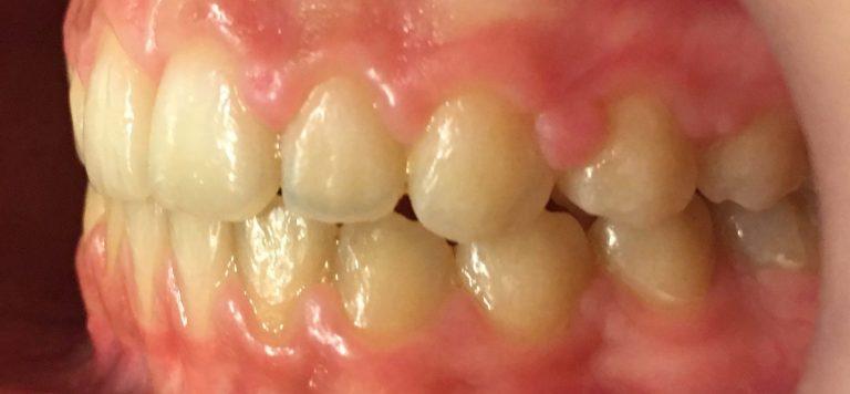 rezultat aparat dentar safir - stanga