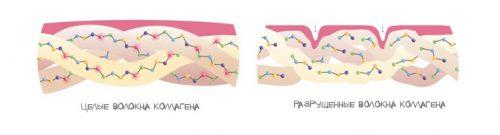 Контрактура Дюпюитрена: современные методы лечения. Контрактура пальцев рук: лечение кисти от контрактуры Дюпюитрена