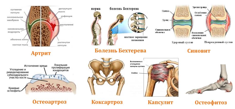Утренняя скованность суставов причины последствия и способы лечения