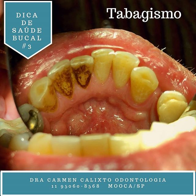 odontologia e tabagismo