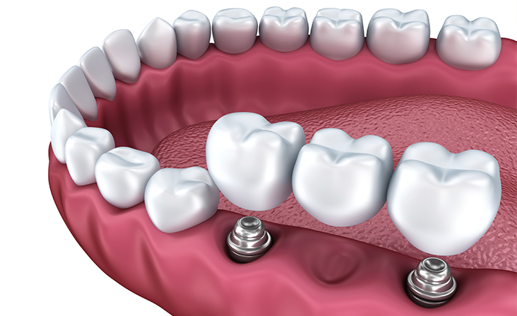 Protocolo ou prótese sobre implante