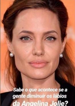 Angelina Jolie com preenchimento