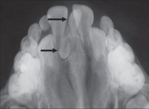As setas indicam a presença de dois mesiodens e o espaço entre incisivos