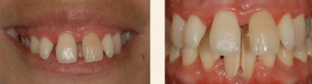Estética gengival e ortodontia