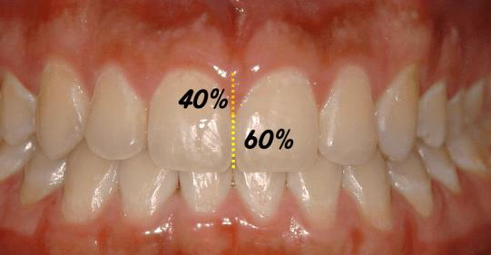 Proporção papilas planejamento estético em ortodontia