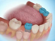 ortodontia perda de dente de leite