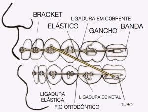 ilustração partes aparelho ortodôntico