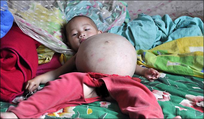 Foetus-child_682_883571a