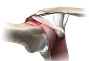 Colisão do manguito rotador contra o acrômio (Síndrome do Impacto)