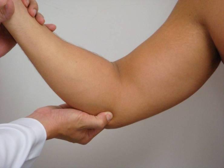 A principal queixa da epicondilite medial é a dor na região interna do cotovelo