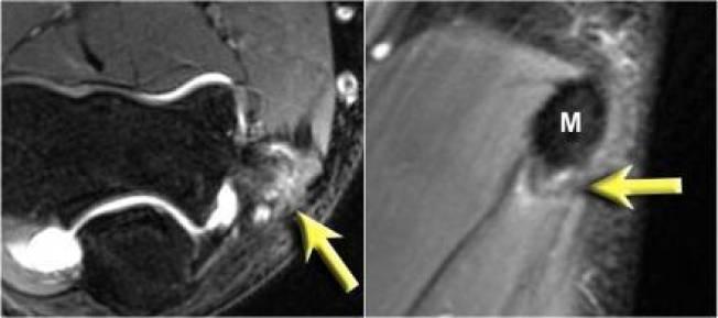 Ressonância magnética demostrando acometimento da origem dos músculos flexores do punho (epicondilite medial).