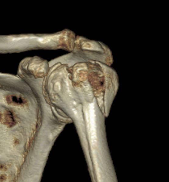 Tomografia computadorizada com fratura do úmero (ombro) proximal