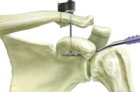 Tratamento da luxação acromioclavicular