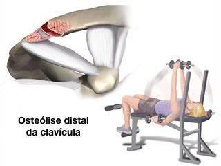 osteolise_clavicula_1