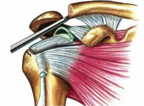 osteolise da clavicula distal