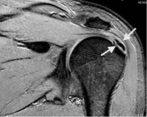 Ressonância magnética demonstrando calcificação no tendão supraespinal