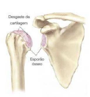 desgaste da cartilagem causando dor no ombro