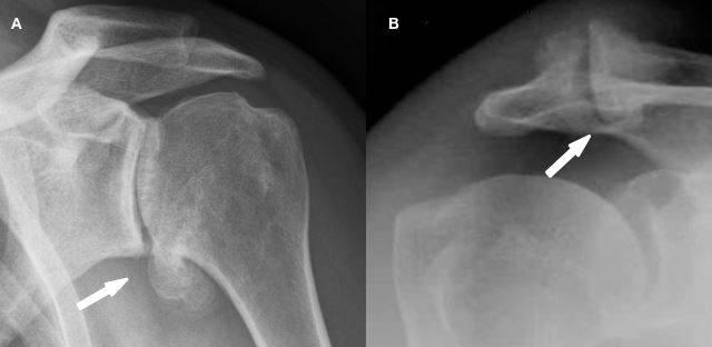 A) Artrose do ombro (glenoumeral) B)Artrose acromioclavicular