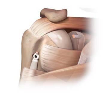 Tenodese da cabeça longa do bíceps