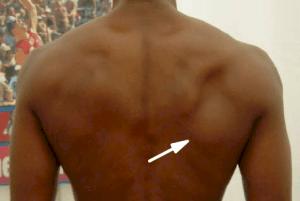 Atrofia do músculo infraespinal (seta)