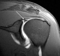 Ressonância magnética demonstrando uma lesão SLAP