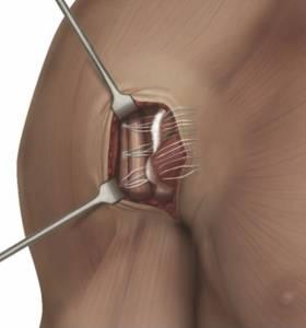 Tratamento cirúrgico da lesão do músculo peitoral maior