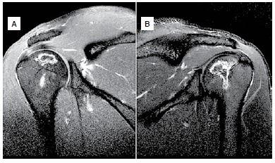 Relato inédito de um paciente com osteonecrose multifocal associada à exposição ocupacional crônica ao alumínio