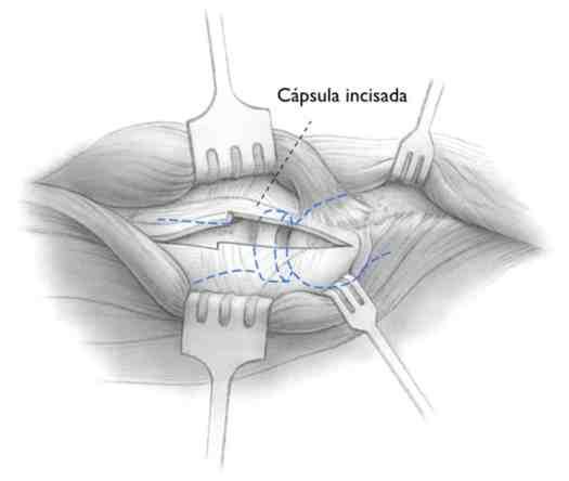 Procedimento de liberação aberta da articulação do cotovelo