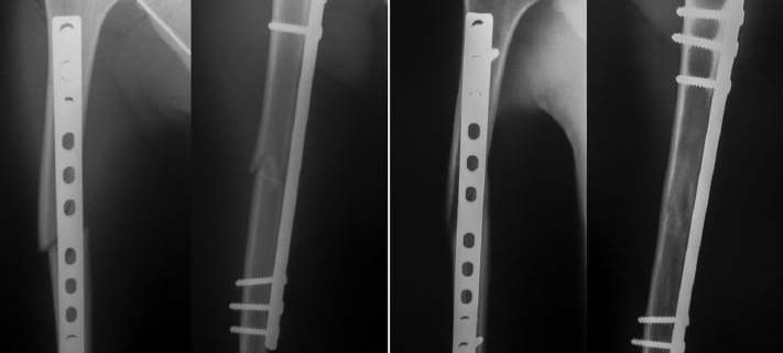 Immediate (A) and 1-year (B) postoperative radiographs of humeral shaft fracture treated by MIPO.